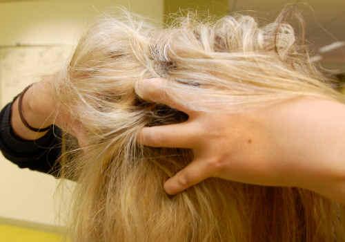 Head lice - a scourge of Australian children.
