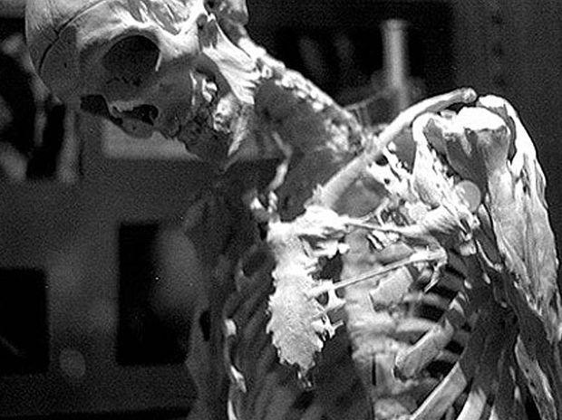 Mutter Museum of medical oddities in Philadelphia.