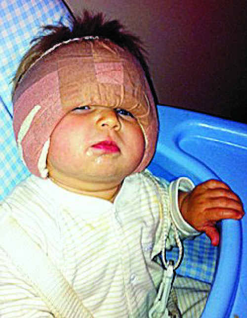 The bandages after surgery were so heavy Amy could barely lift her head.