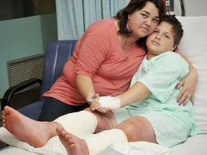 Boy may need skin graft after attack