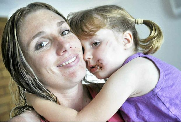 DEMAND FOR ANSWERS: Kellie Trew with daughter Aleeah Boase, 3, who was attacked by a dog in Tannum Sands.