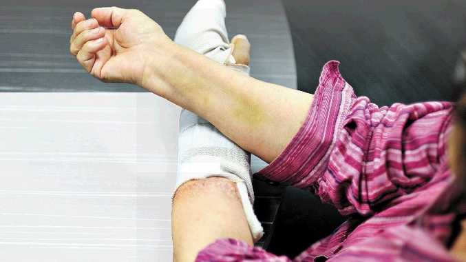 The woman's wounds as a result of the attack.
