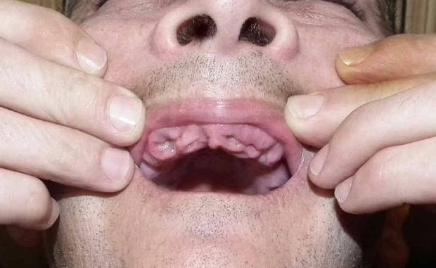 A Maryborough man is devastated after a dentist mistakenly removed his upper teeth instead of repairing them.
