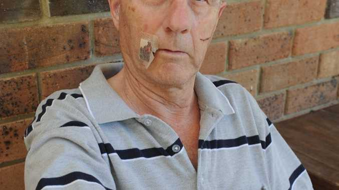Robert Franklin shows the wounds he received after being attacked by a kangaroo in his backyard at Torbanlea in October.