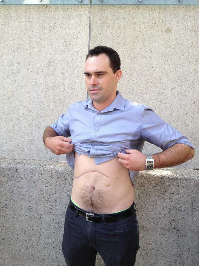 Injured worker Nathan Sandy, 27, fears changes to Queensland's workers' compensation program.
