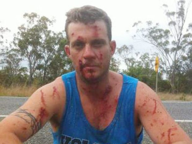 Dave Farmer was injured when a passing vehicle's passenger threw a 1.25 litre drink bottle at his truck, smashing through the windscreen, on a 100km stretch of the Bruce Hwy.