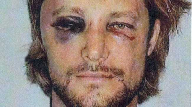 Gabriel Aubry's injuries