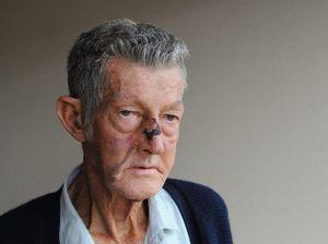 Savage assault leaves man, 71, shattered