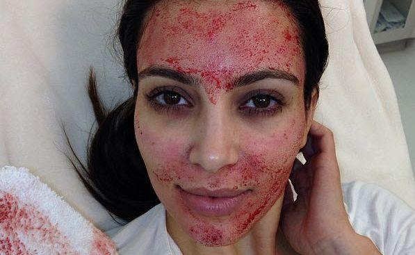 Kim Kardashian after a