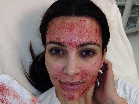 "Kim Kardashian after a ""vampire facial""."