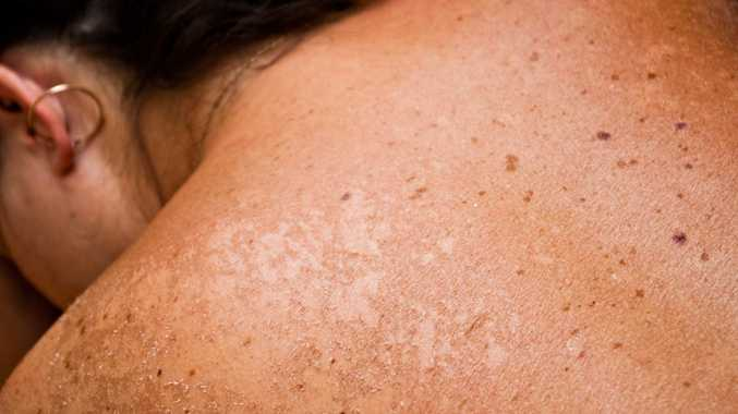 Natural remedy wonder drugs not effective on skin cancer, says doctor