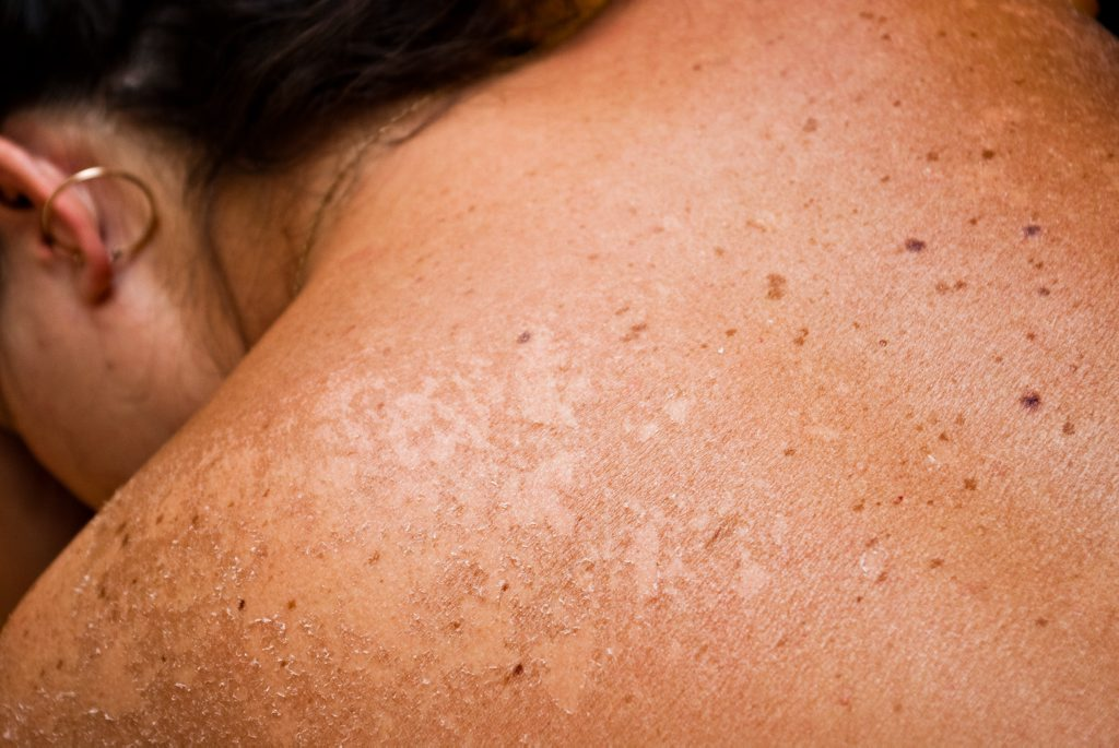 The data shows consultations for skin cancer and sunburn were the ninth largest cause of GP consultations in Australia, with sunburn alone among the top 30 reasons for an appointment annually.