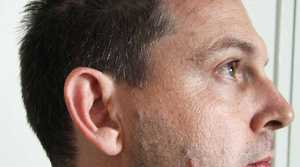 SCARS: Police photographs of marks on Gerard Baden-Clay's skin.