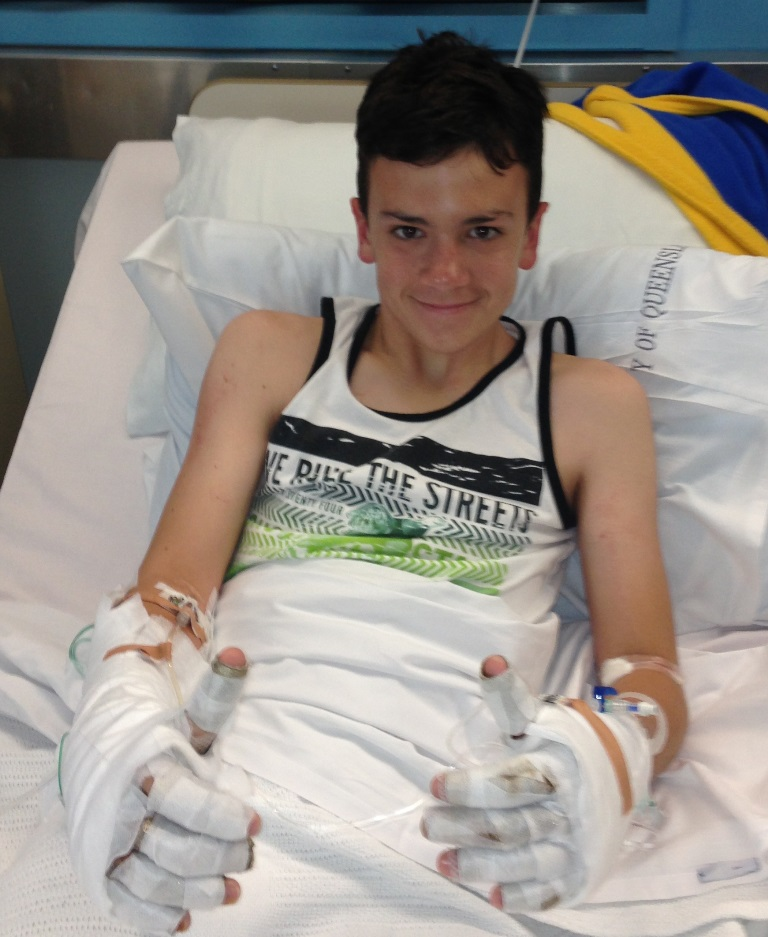 James Holmes, 13, recovers in Brisbane's Royal Children's Hospital after being burnt when his yacht clipped high voltage power lines while sailing in Gladstone.