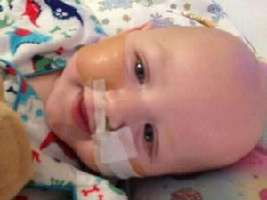 Brave Malakai needs a new esophagus at nine months' old