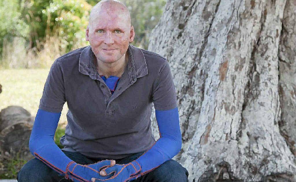 Burns sufferer Matt Golinski will speak on The Healing Power of Giving at a special fundraising breakfast at Noosa Springs on June 13.