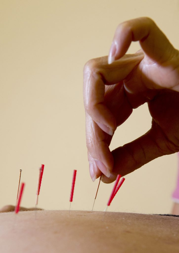 Thinner needles are used in esoteric acupuncture.