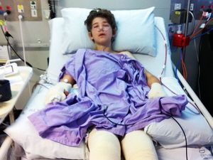 Ipswich teen golf bomb victim facing months in hospital