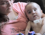 Splint made by 3D printer used to save baby's life