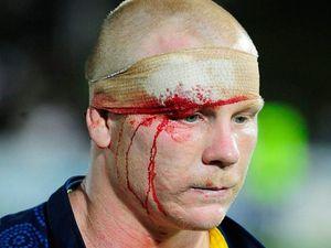 Claims former NRL bad boy bit player's penis in melee