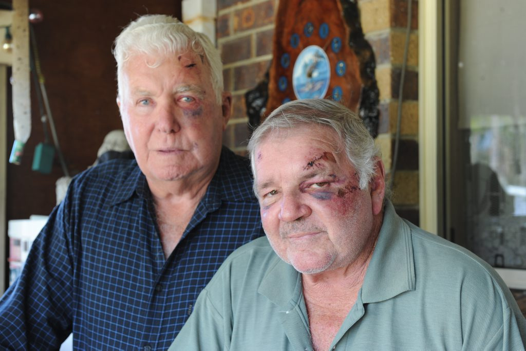 Terry White,73, and Graham Law,64, show some of the injuries they received during the alleged bashing at a hotel in Brisbane.