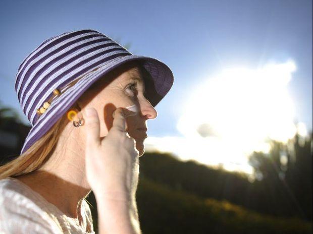 Deborah Martin is a melanoma patient survivor. Photo Luka Kauzlaric / The Observer