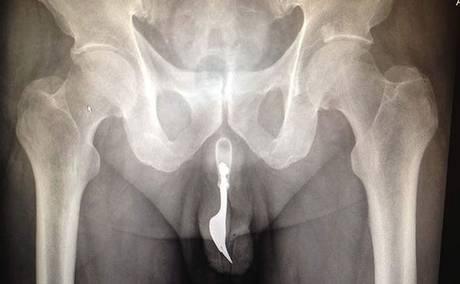 Xray großen Penis