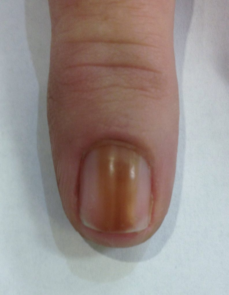 The cancer is characterised by long brown or black streaks under the nail bed.