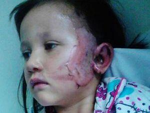 Girl badly burnt after firework lands in pyjamas