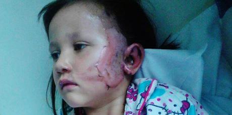 Elledy Harawira, who was burnt by a firework on Saturday night.