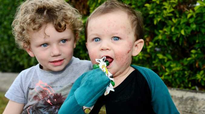 Hunta Breingan, age 3 and his brother Vann Breingan, age 13m, who battles with eczema. Photo Sharyn O'Neill / The Morning Bulletin
