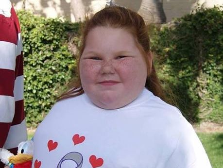 Alexis Shapiro, 12, developed hypothalamic obesity after an operation two years ago.