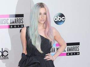 Ke$ha's mother insists star doesn't have drinking problem.