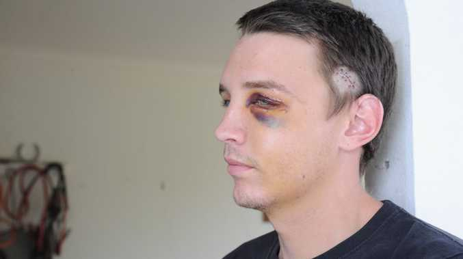 Jaiman Tyrrell was allegedly assaulted on his way home from a night club in Torquay.