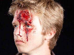 Facial surgeons don't like Mondays