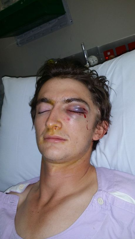 Cameron Kanofski lies in hospital after an assault outside the Portadown Hotel in Toowoomba left him with three cheekbone fractures and a fractured eye socket.