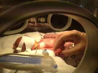 Scott Cousins was born 13 weeks premature.