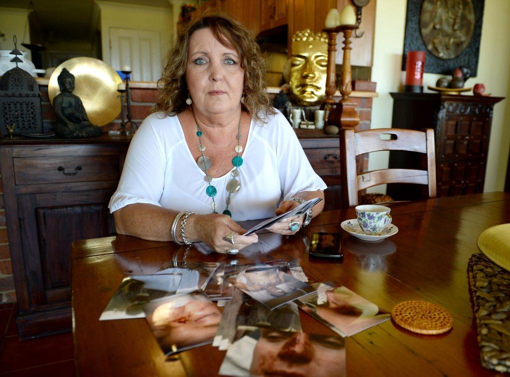 Karen Boyd with photos of her sons injuries. Photo Allan Reinikka / The Morning Bulletin