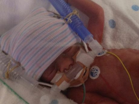 Jonah McGorm spent the first three months of his life in hospital.