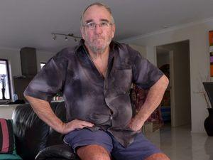 Meningococcal survivor sings praises of public hospital