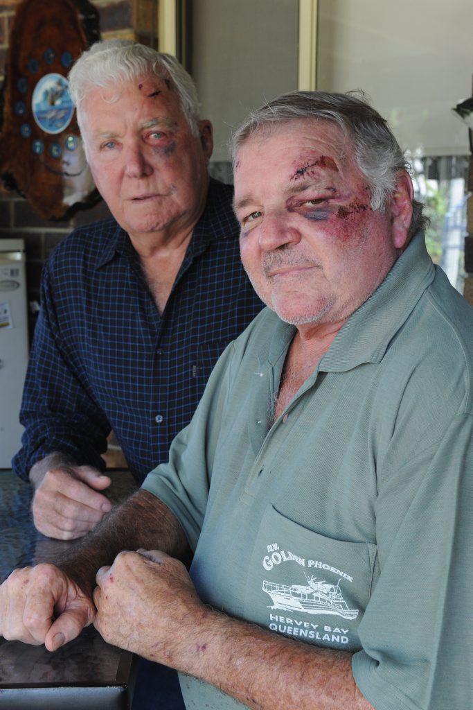Bashing victims Terry White, 73, and Graham Law, 64, with some of the injuries they received from being bashed outside a Brisbane hotel.