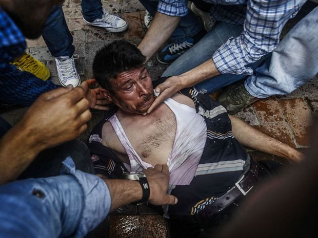 People assist a man injured by a rubber bullet fired by police as they clash with police during a demonsration against a recent accidental explosion at a mine, on May 16, 2014, in Soma, Manisa province. Turkish riot police fired tear gas Friday at thousands of protesters at the scene of a disaster that killed nearly 300 miners, as the government faced a worsening political backlash.