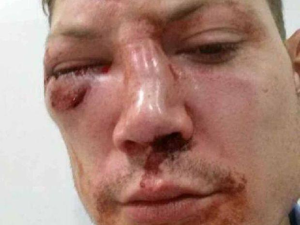 ASSAULTED: Pieter Tjerkstra was beaten at a nightclub Sunday morning.