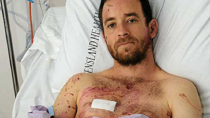 LUCKY ESCAPE: Timo Fuchs in Nambour General Hospital after suffering a horrific dog attack leaving him with a broken leg and multiple lacerations and bruises.