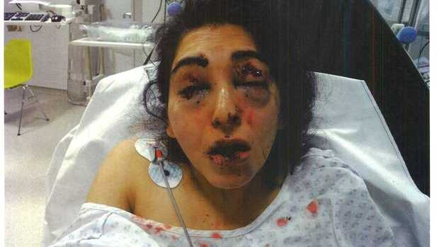 Jageer Mirgind was left partially-sighted after the attack by her father-in-law, for which he has been jailed for ten years and eight months.