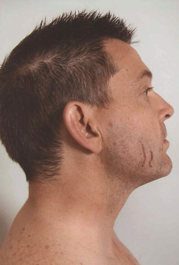 A supplied undated image of scratches on the face of Gerard Baden-Clay.