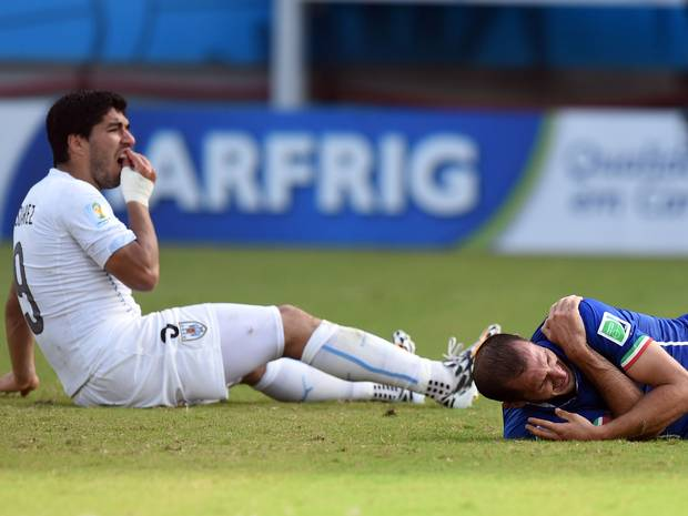 Luis Suarez holds his teeth after colliding with Giorgio Chiellini Luis Suarez holds his teeth after colliding with Giorgio Chiellini. GETTY