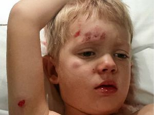 Sickening attacks on kids cause mum to ask... Why?