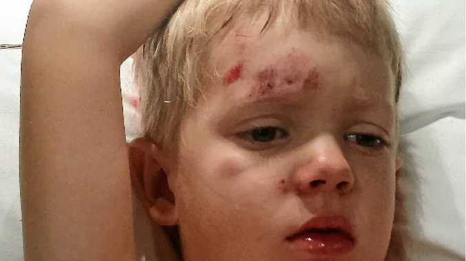 VICIOUS ATTACK: Jasmine McGowan's four-year-old son was attacked by a dog in February.