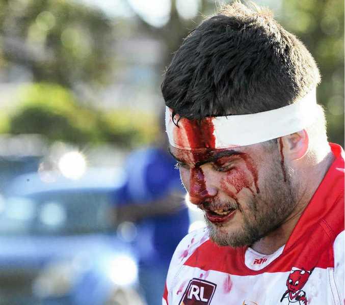 CRIMSON MASK: South Grafton's Matt Woodley looks worse for wear after his head clash with fellow Rebel Dwayne Duke. PHOTO: DEBRAH NOVAK